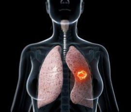 Người mắc bệnh ung thư phổi giai đoạn cuối nên ăn gì?