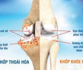 Món ăn phòng loãng xương cải thiện đau khớp