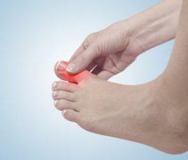Món ăn cho người bị gout giúp giảm các chứng đau